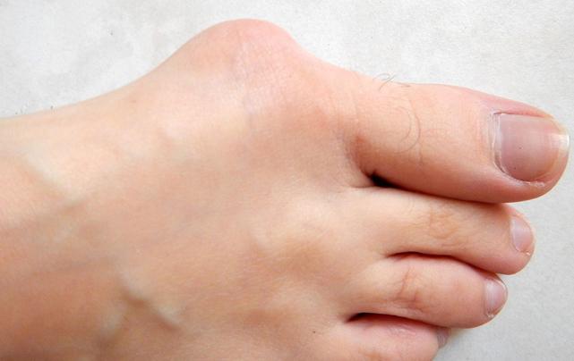 انحراف شست پا و درمان بدون جراحی آن